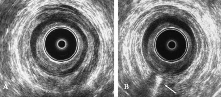ultrasonido endoanal en guadalajara
