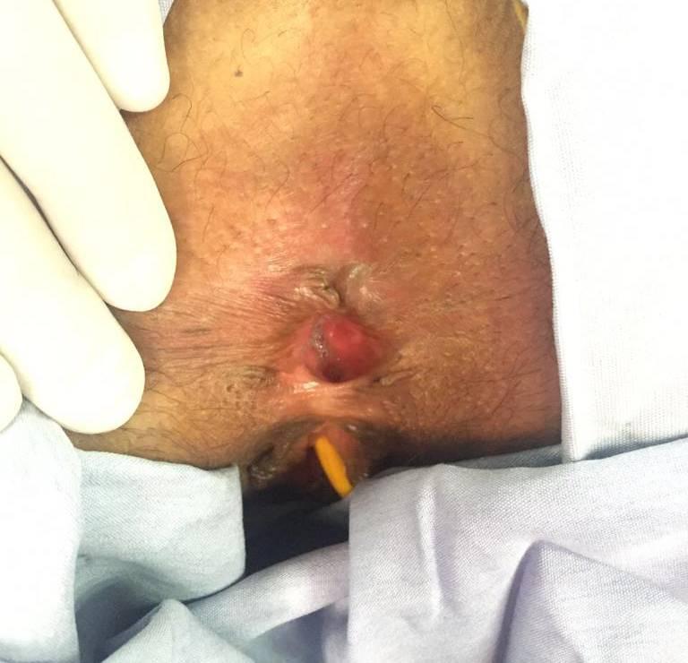 cirugia plastia anal guadalajara