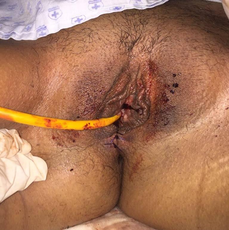 cirugia rectovaginal en guadalajara