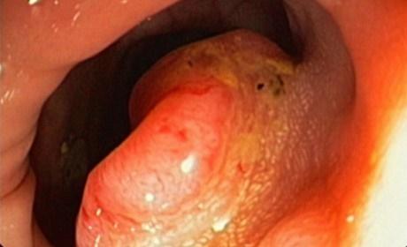 tratamiento de cancer de colon en jalisco